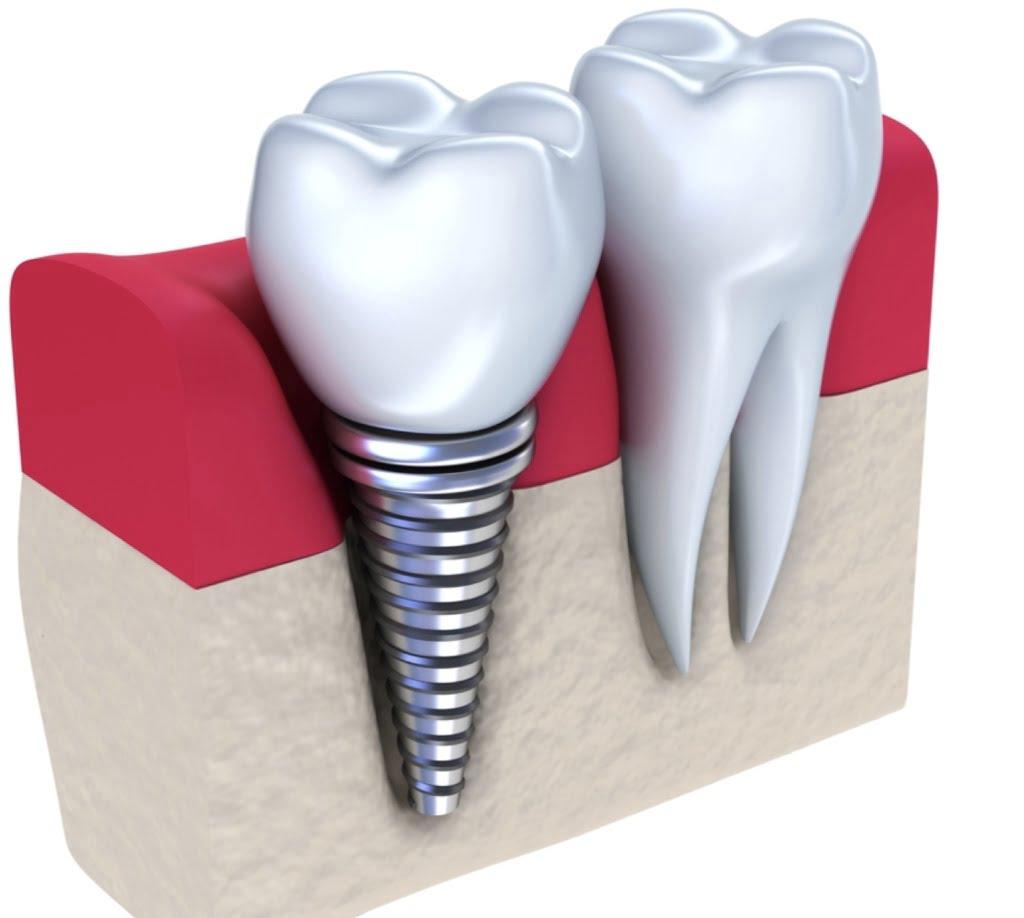 Implant dentaire : Comment changer l'implant ?