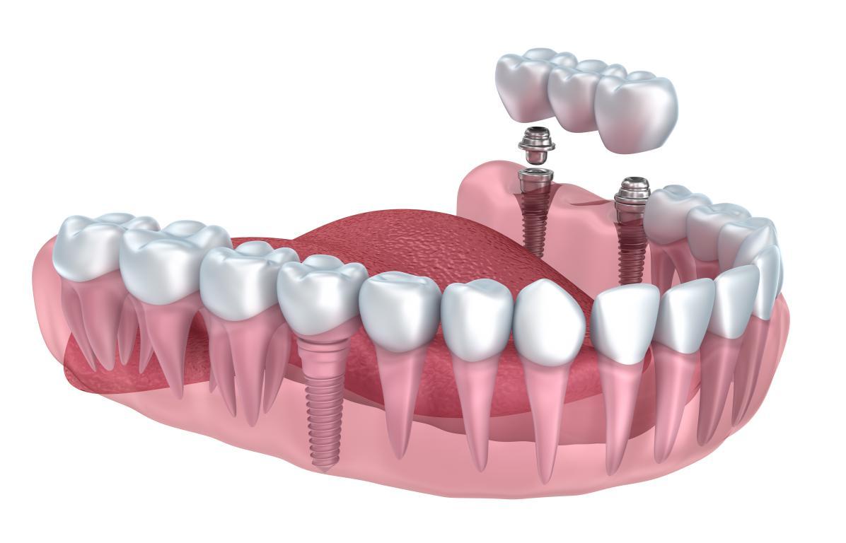 Implant dentaire Lyon : quels peuvent être les désavantages ?
